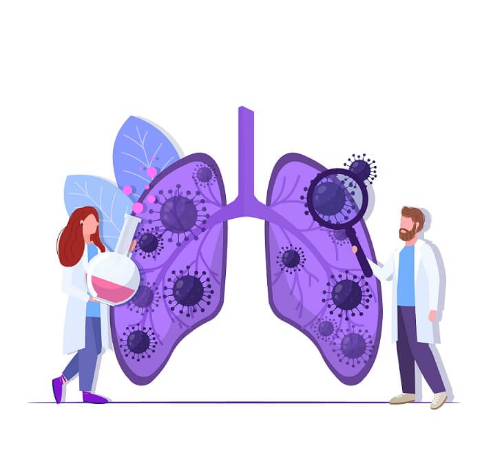 koronawirus na płuca
